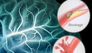 cara-mengobati-penyakit-penyumbatan-darah-dengan-herbal-kapsul-cuci-darah-rehab-hati